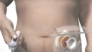 Video υποκλυσμού με το σύστημα Alterna